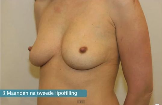 3 maanden na tweede lipofilling