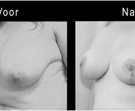 voor en na borstverkleining
