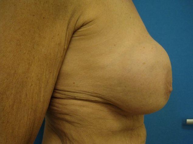 kapselvorming borsten