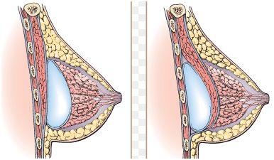 voor of achter de borstspier