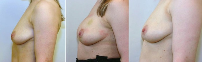 borstvergroting met lipofilling