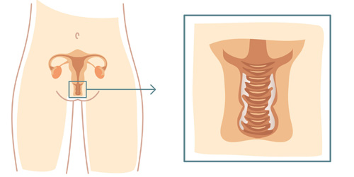 PreMeno Duo om de zuurgraad van je vagina te herstellen