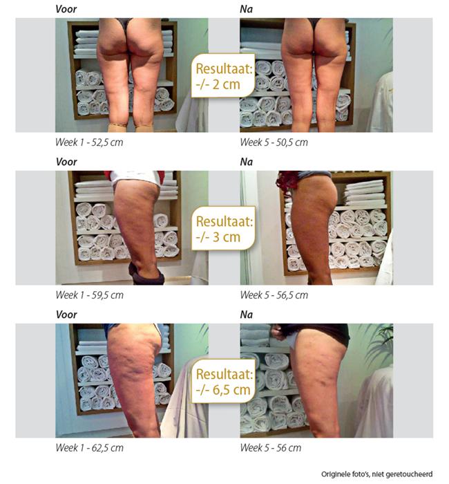 CelluCare, de anti-cellulite crème die doet wat hij belooft