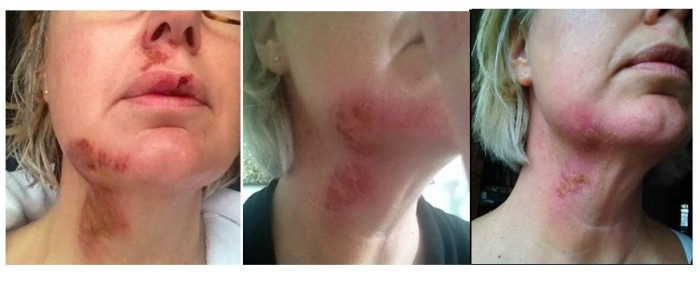 vlnr: drie, vijf en zeven dagen na het ongeluk