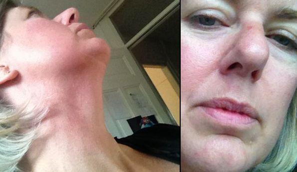 vlnr: mijn hals na tien weken, en het litteken onder de neus is ook bijna geheel weg
