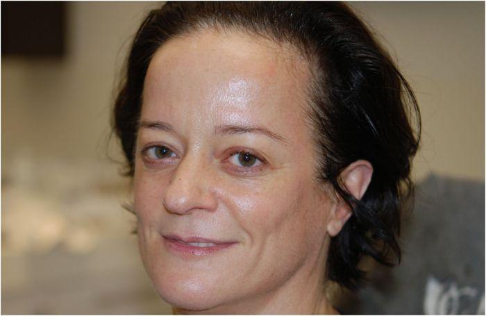 blozend na de bio peeling en lifting facial neoderma