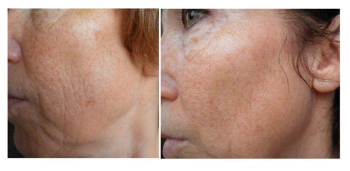 voor en na laser pigment behandeling