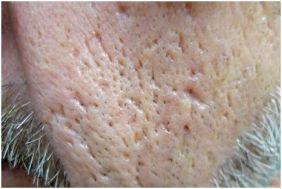 icepick scars