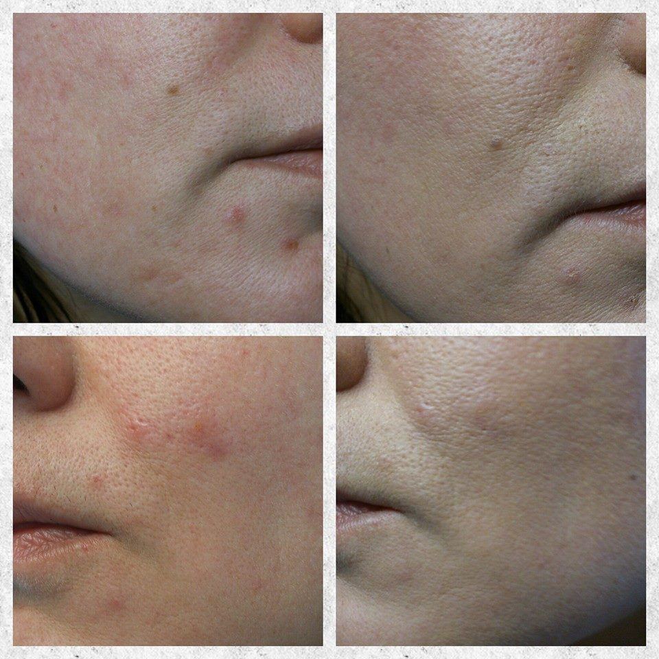 Image Skincare I Conceal Beige