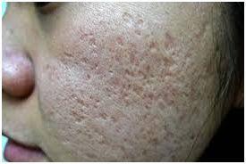 box scars