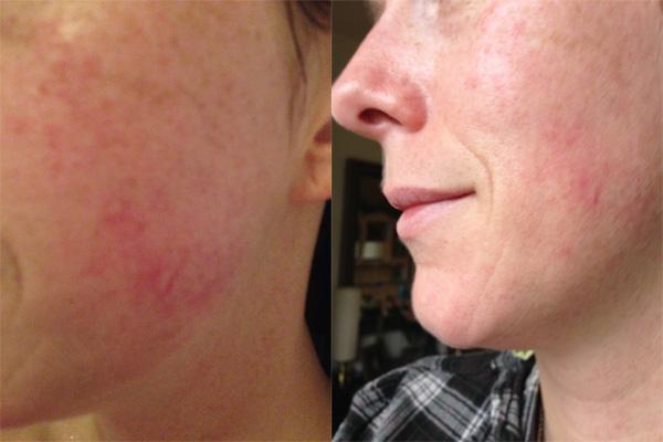 Links: voor de behandeling, Rechts: na de behandeling