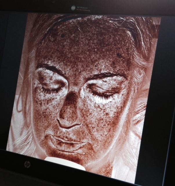 pigment in de huid gemeten 26 mei