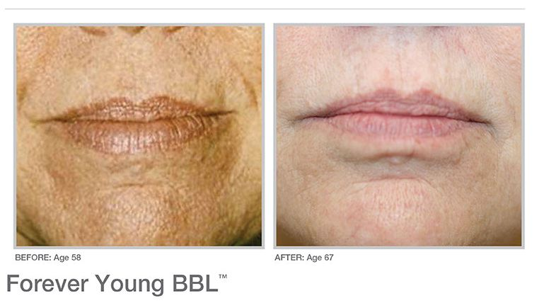 BBL huidverstrakking