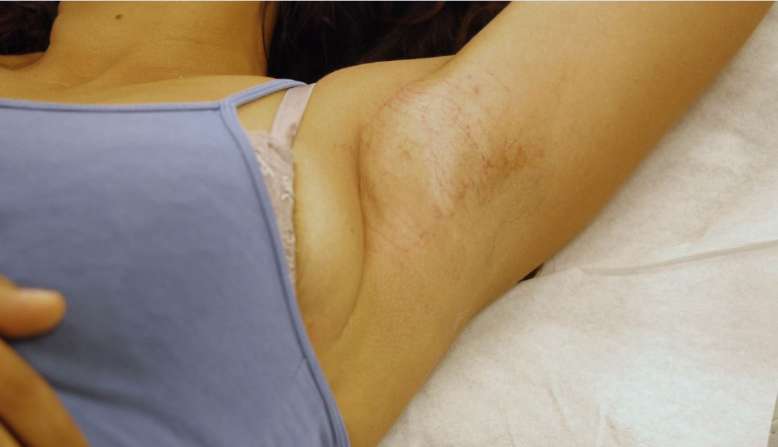 De huid is na afloop gezwollen