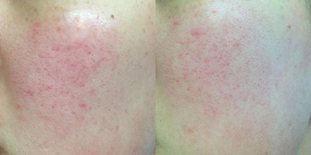 Lookx Derma Skin Polish Pads Voor en Na