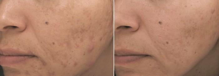 Acne behandeling met PCA skin, voor en na.