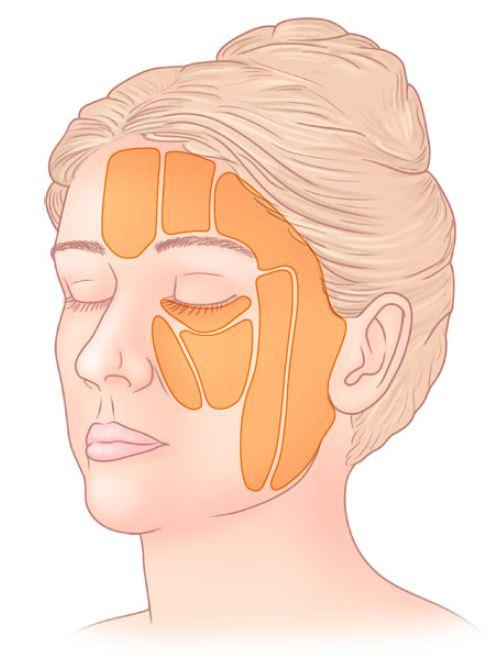 De belangrijkste vetcompartimenten in het gezicht