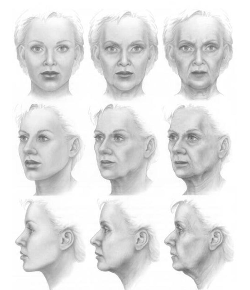 gezichtsveroudering in 3 D