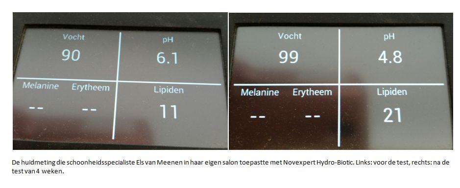 huidmeting voor en na met novexpert hydro biotic gevoelige huid