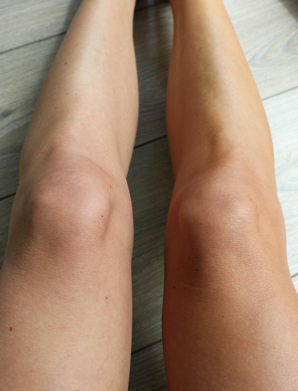 Corine's benen, waarbij het linker been op de foto zonder self tan is, en het rechter met Selftan Lotion.