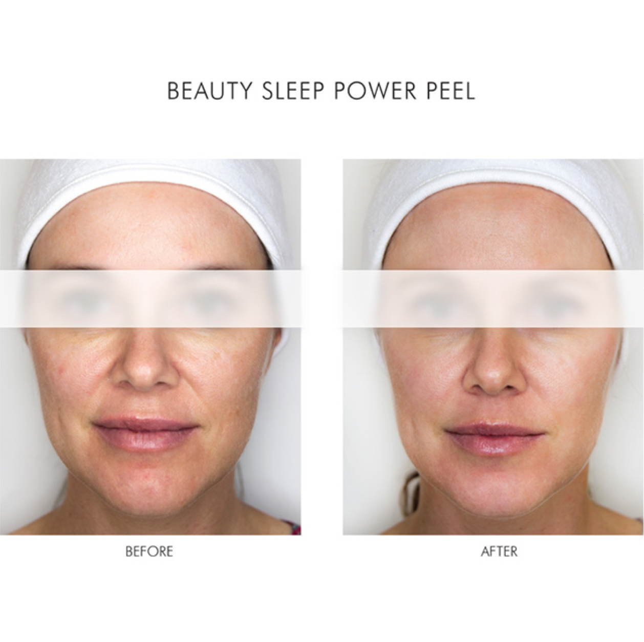 Alpha-H Beauty Sleep Power Peel Before and After