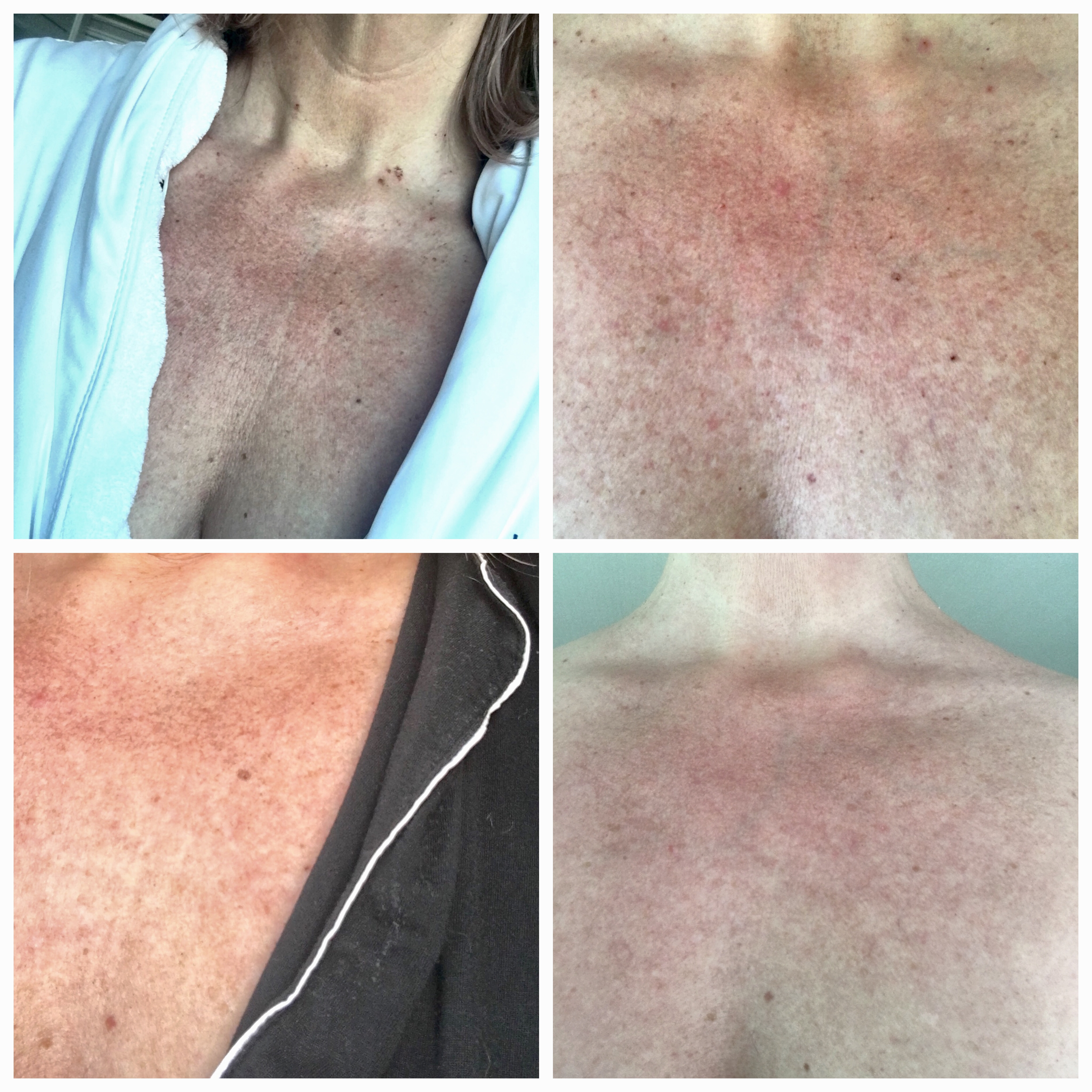 Zelfgemaakte foto's van mijn decolleté, vlnr: op 20 april, de avond na de behandeling, 23 april, 27 april en 3 mei 2016