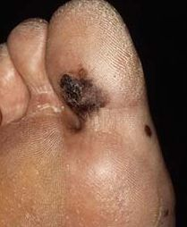 Acrolentigineus melanoom. Bron: huisarts en Wetenschap.