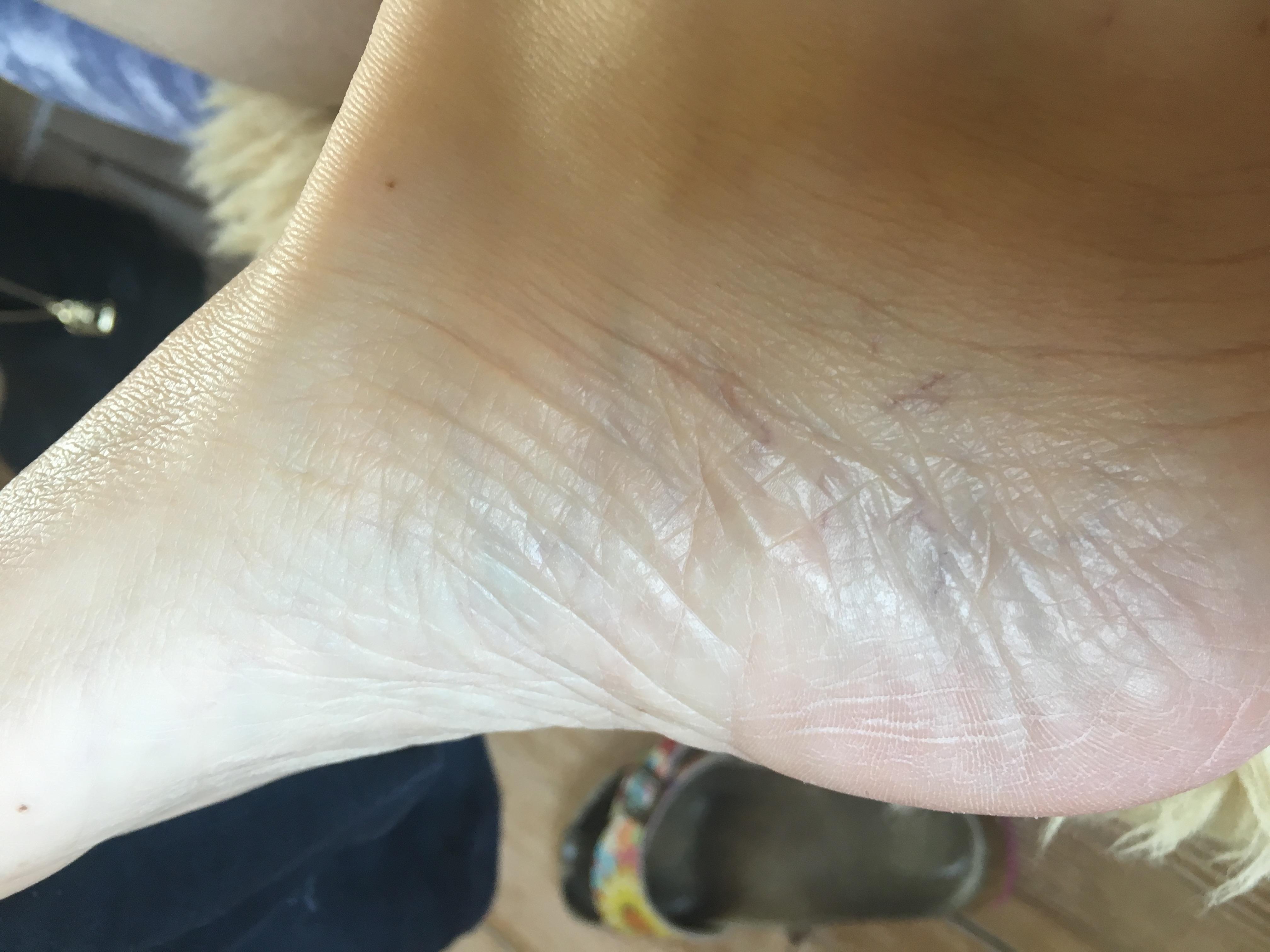 Nog frisse huid bij Monique 2 dg na peeling