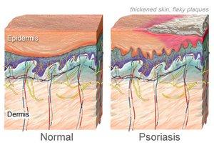 Psoriasis Schematisch