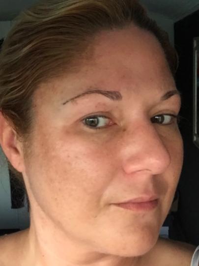 Esther's huid voor de peeling