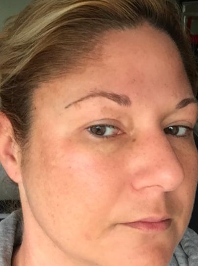 Esthers huid ruim tien dagen na de peeling.