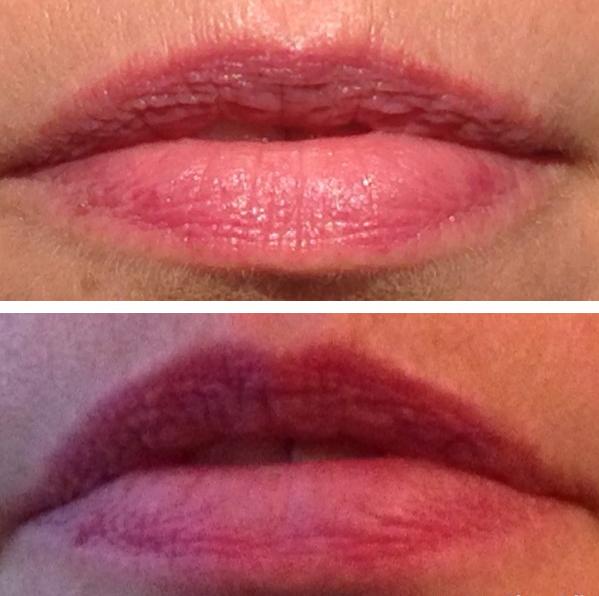 Filorga Nutri-Filler Lips na 7 dagen