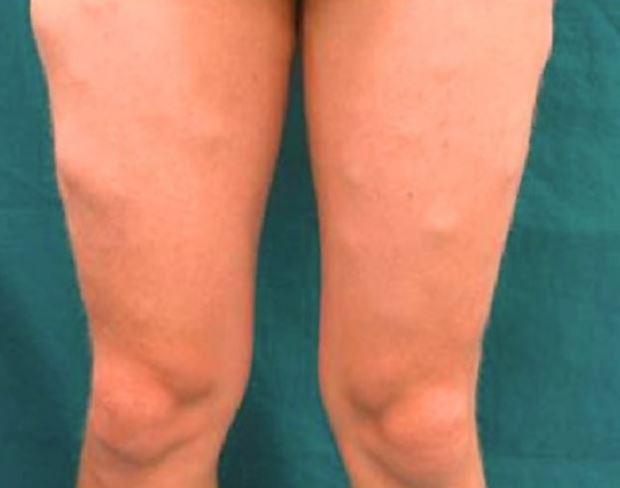 Ziekte van Dercum met pijnlijke vetbulten