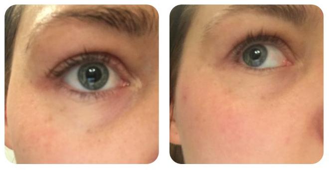 Dermalogica Age Reversal Eye Complex Voor en Na