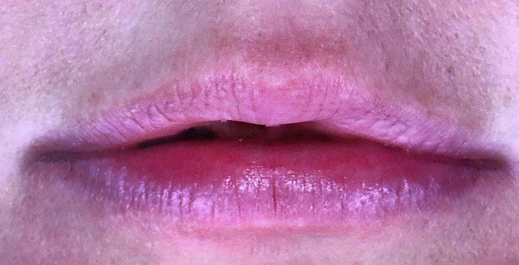 Genezen lip na behandeling met Hyaluronidase medicijn