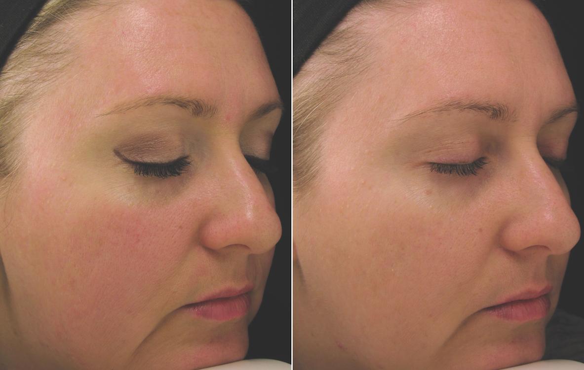 pca skin behandeling rode huid, voor en na 4 weken