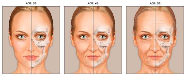 verandering schedelvorm bij ouder worden