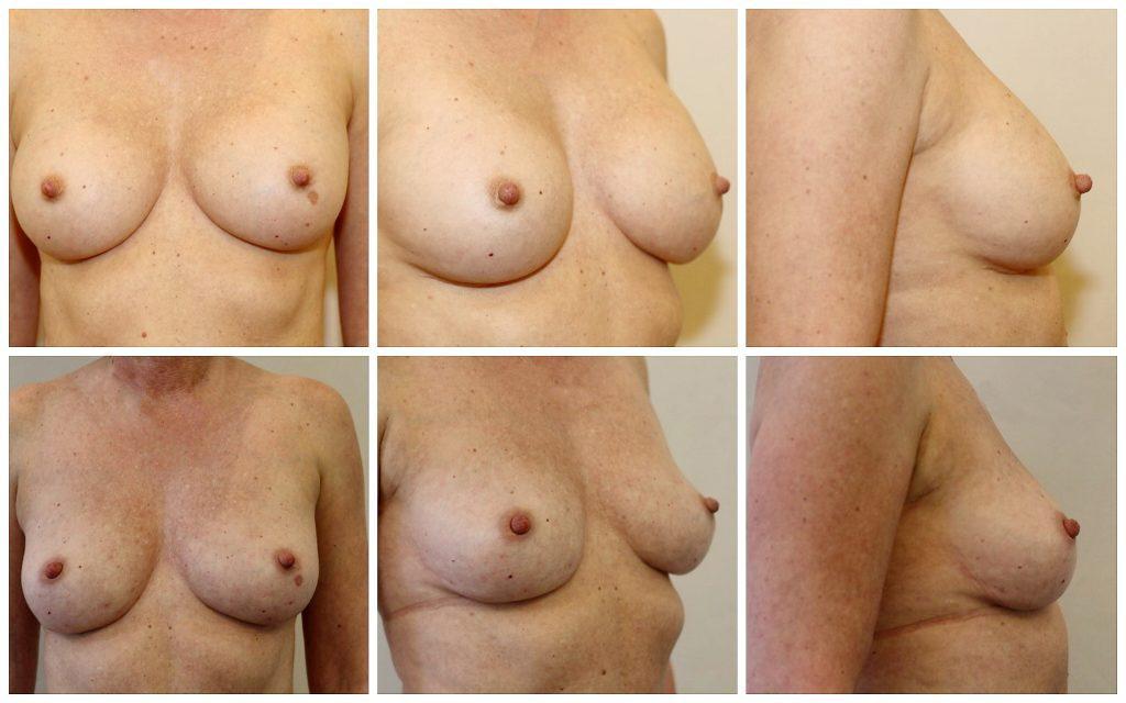 borstimplantaten eruit en gevuld met eigen vet