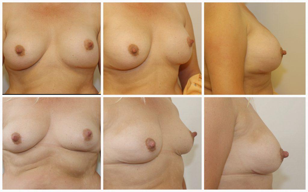 borsten met vetweefsel gevuld