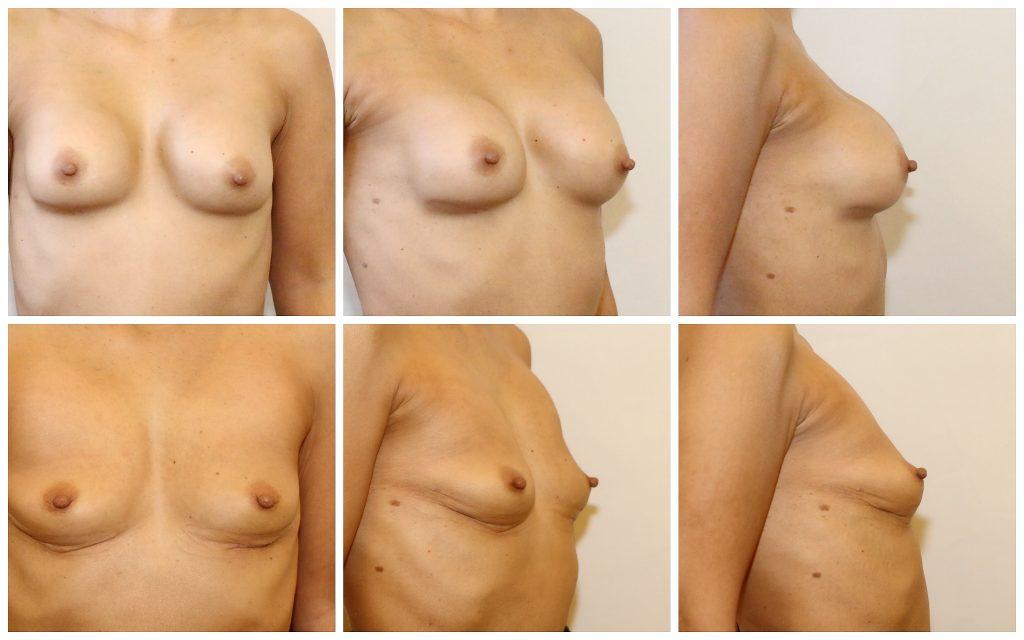 implantaten eruit, zo zien je borsten eruit