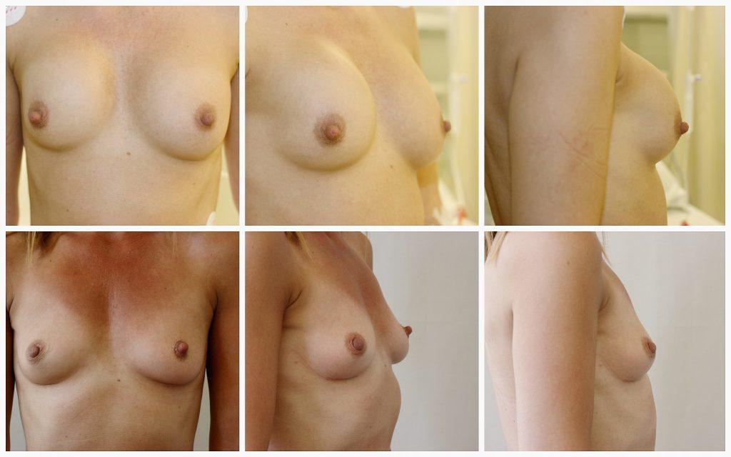 borsten na implantaten