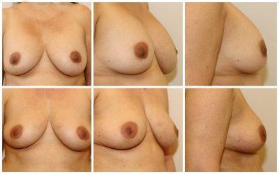 borsten met lipofilling