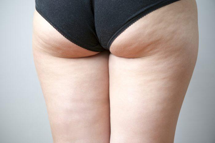 bindweefselmassage cellulitis ervaring