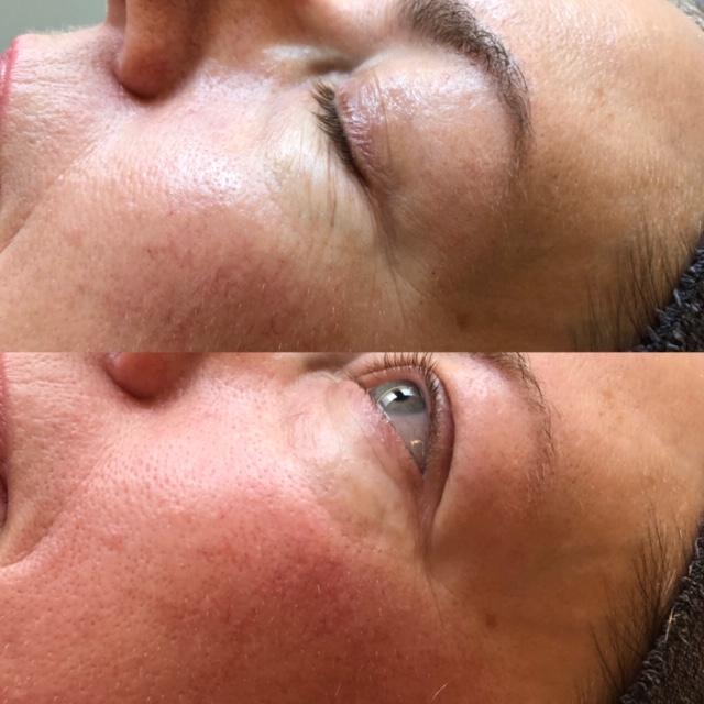 bindweefsel massage voor en na copyrights beautyjournaal