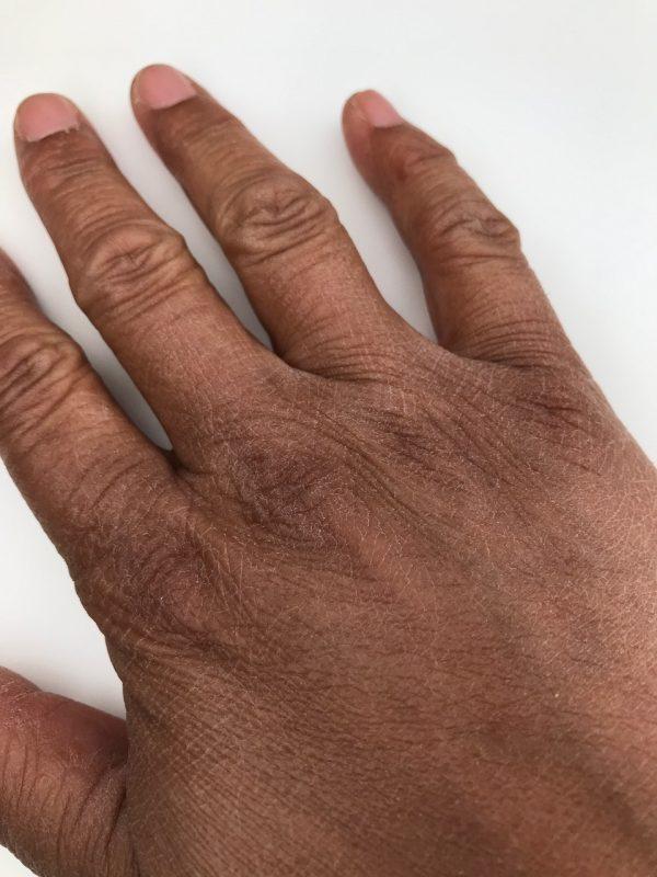 droge hand