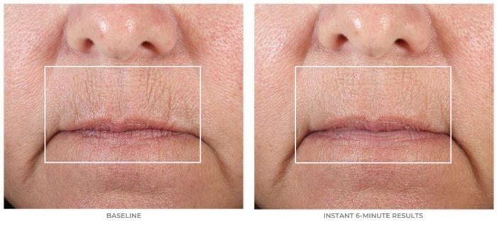 nuface fix lips