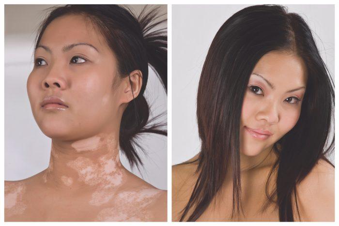 microskin camouflage vitiligo