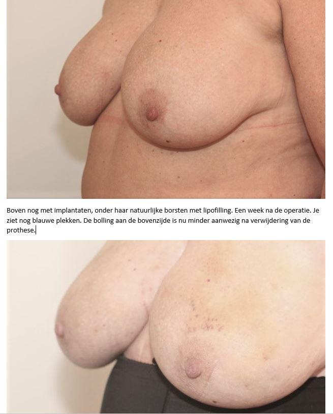 boven voor en na lipofilling en prothese verwijdering