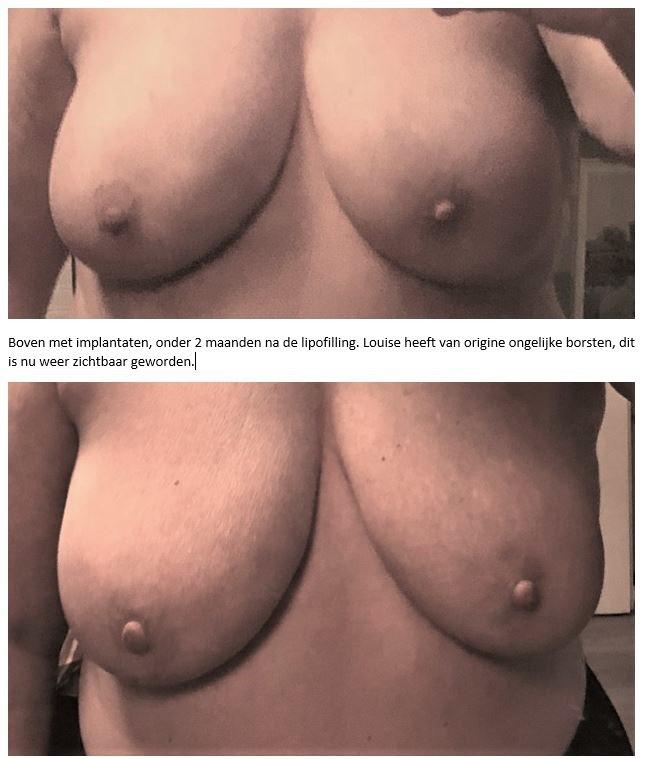 borsten voor en na lipofilling
