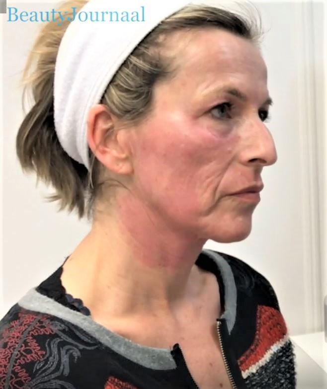 Odile's huid net na de behandeling